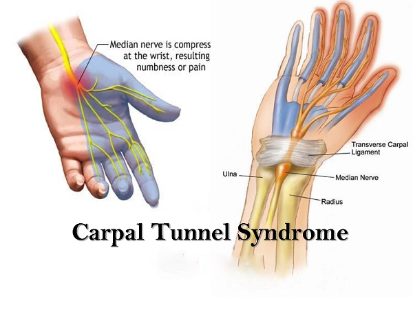 Carpal Tunnel Surgery Endoscopic St Louis Missouri